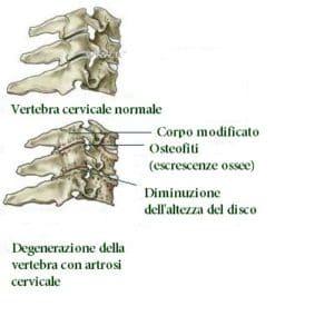 artrosi cervicale