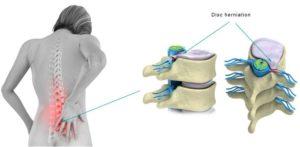 ernia lombare nervo sciatico