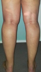problemi linfatici ginocchio
