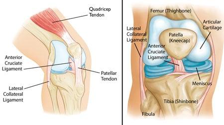 Tendinite del tendine rotuleo