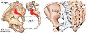 sacroileite anatomia
