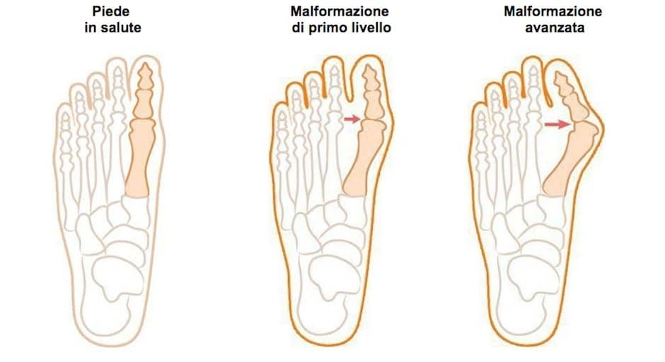 Dolore al piede: le cause e i sintomi più comuni