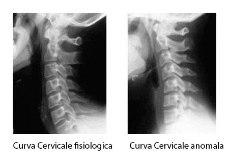 curva cervicale anomala