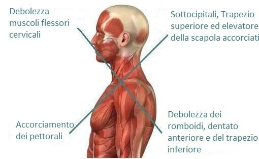 sindrome crociata superiore