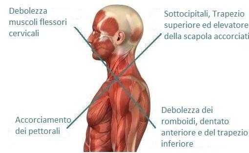 sindrome crociata superiore