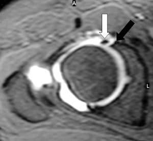 risonanza magnetica spalla