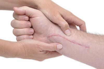 trattamento manuale cicatrice