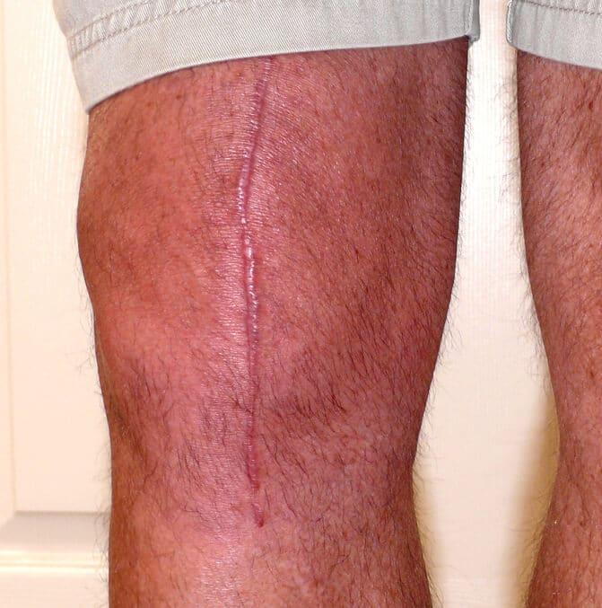 ginocchio cicatrice Cheloide