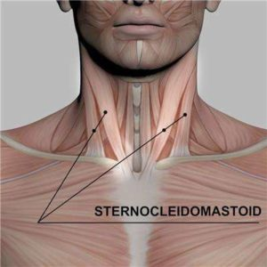 muscolo sternocleidomastoideo