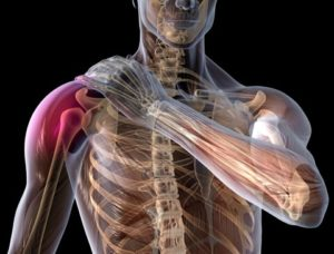 impingement della spalla