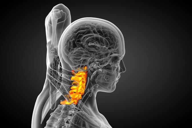 cos'è artrosi cervicale