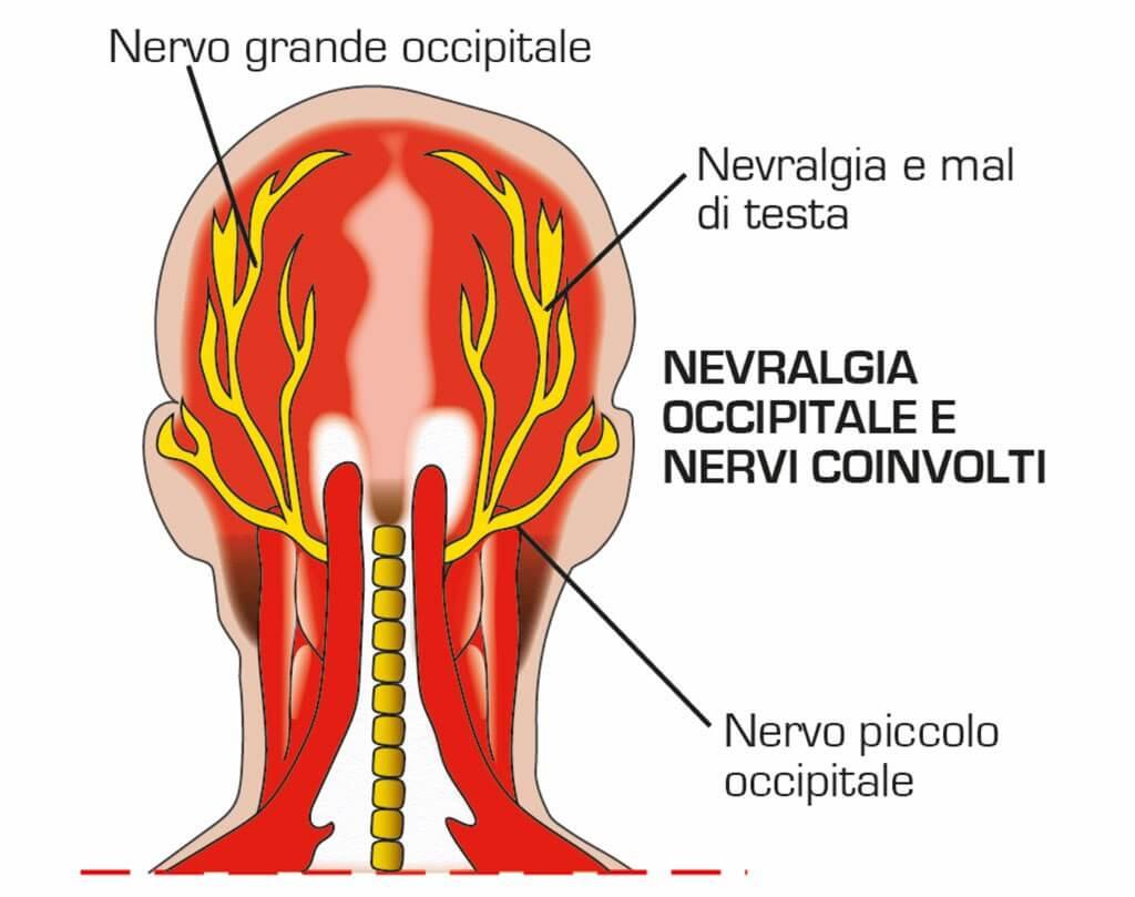 Dolore alla nuca anatomia cause rimedi e cura for Mal di testa da cervicale quanto puo durare