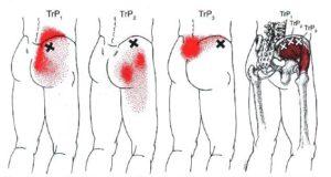 trigger point medio gluteo sacroileite