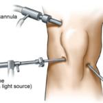 artroscopia ginocchio gonalgia