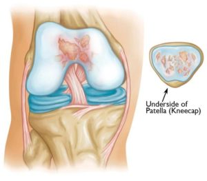 artrosi femoro rotulea