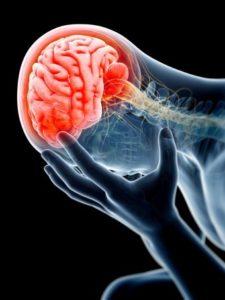 dolore cervello cervicale
