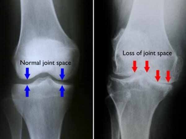 artrosi ginocchio RX
