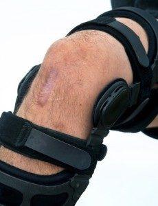 Tutore chirurgia ginocchio