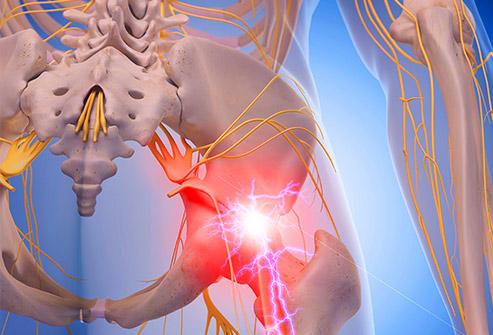 sciatica sintomi