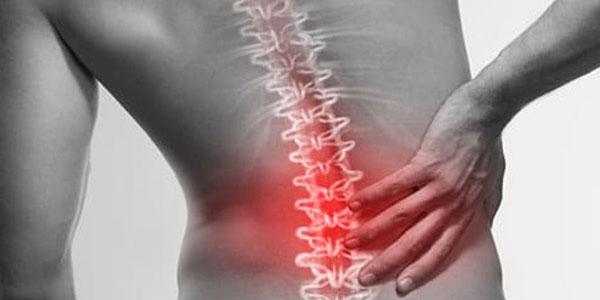 patologia nervo sciatico