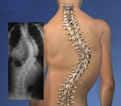 Scoliosi radicolopatia