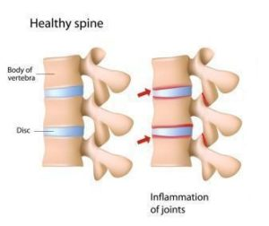 radicolopatia artrite reumatoide
