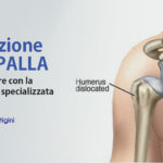 Lussazione Spalla: Sintomi, Cure e Recupero