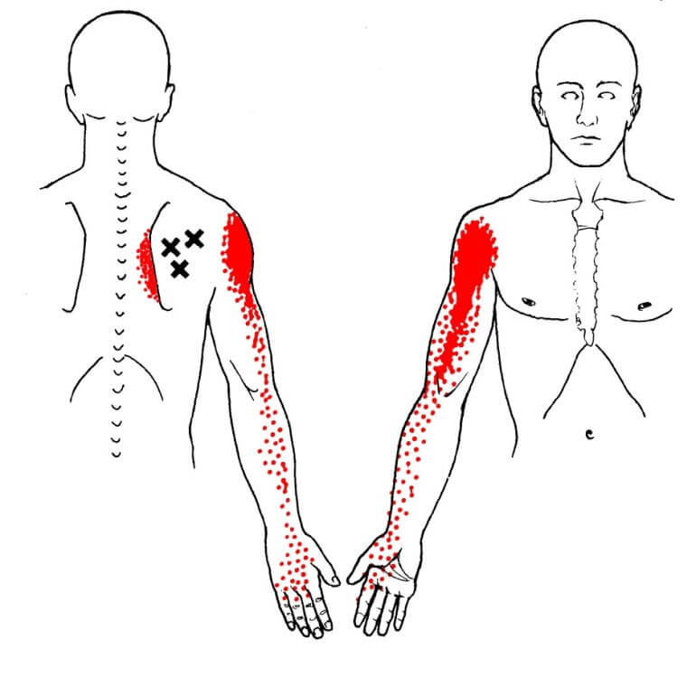 Area trigger point sottospinoso
