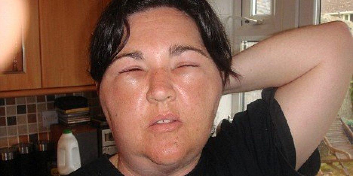 cause di perdere peso in faccia